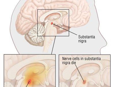 Cure for Parkinson's Disease in underway