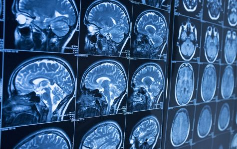 New study Published on Aging and Brain Longevity