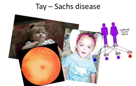 Cure for Tay-Sachs Disease