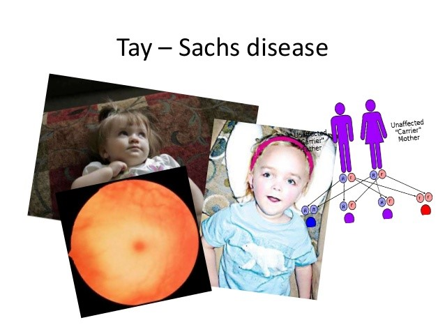 Cure+for+Tay-Sachs+Disease